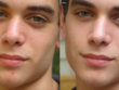 Remove any blemishes from 10 pictures