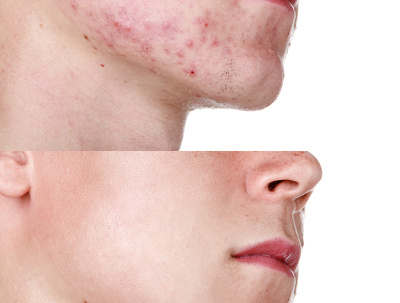Remove acne from skin on 5 photos