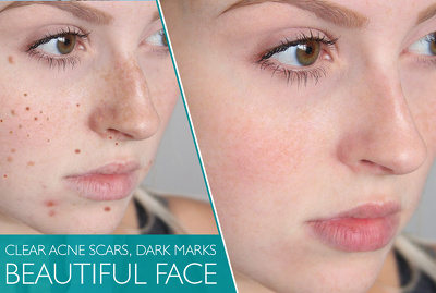 Clear acne scars dark marks to make your picture beautiful