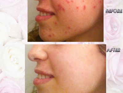Retouch images, professionally remove spots, pimples in 1 hr