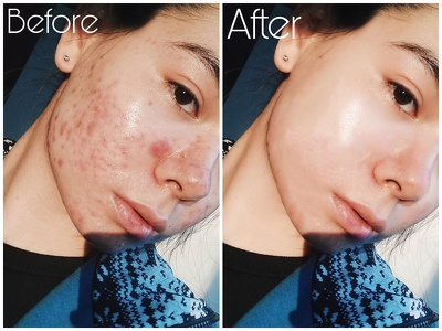 Remove Acne And Touch Up Your Selfies